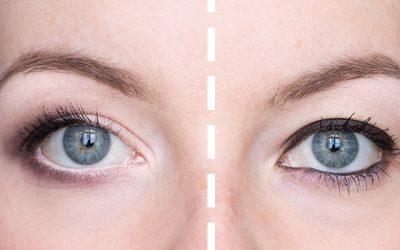 Schlupflider richtig schminken – Anleitung